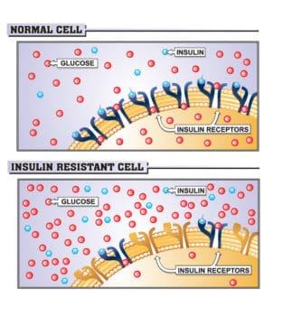 PCOS en insulineresistentie