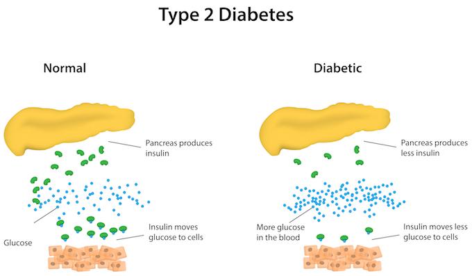 diabetestype2