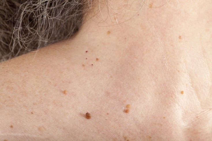 Skin tag door PCOS